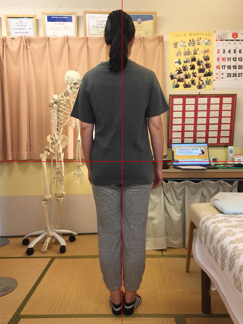 腰痛 右の腰が痛い 坐骨神経痛 妊活 不妊治療 本格整体院高久 大泉学園店
