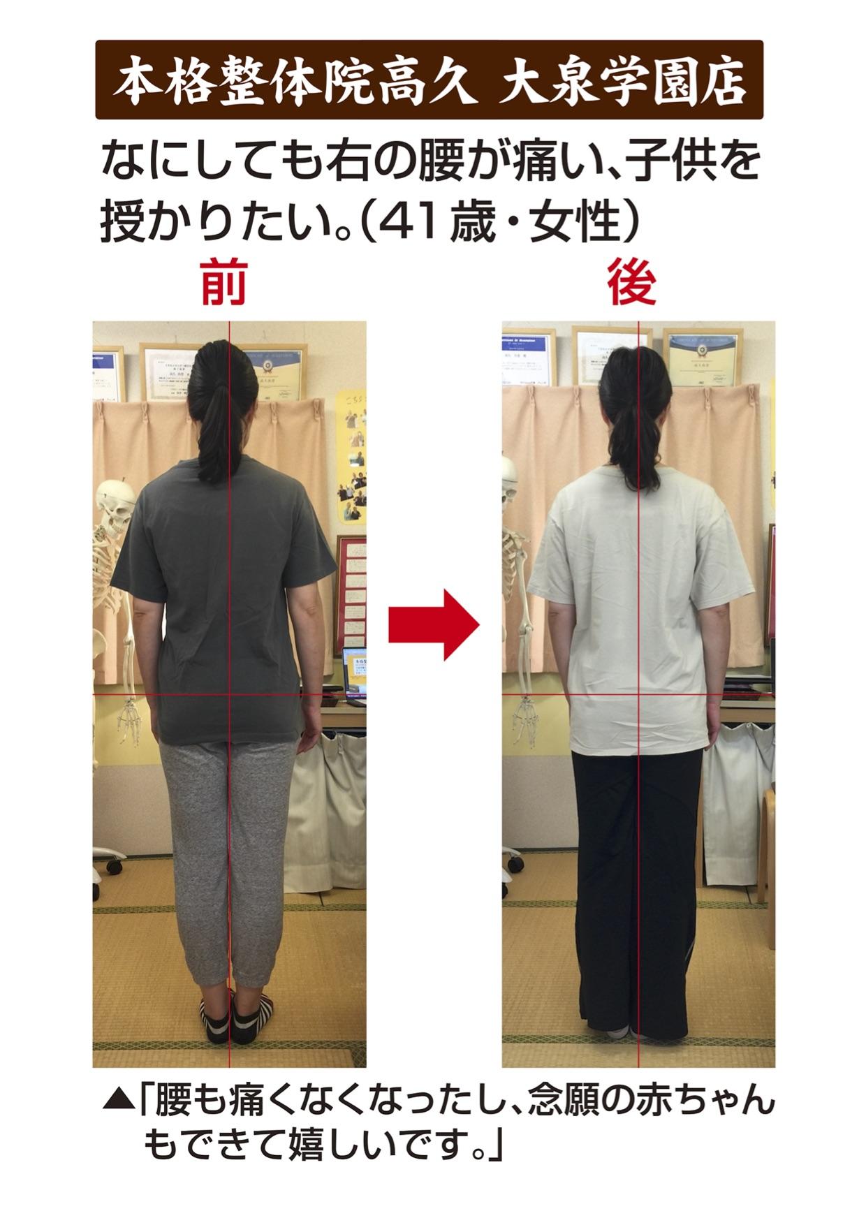 不妊治療 腰痛 右腰が痛い 本格整体院高久 大泉学園店
